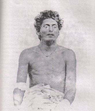 Hindu–German Conspiracy - Bagha Jatin, wounded after his final battle at the banks of Burha Balang, off Balasore. His enterprise was deemed one of the most significant threats to British India in autumn 1915.