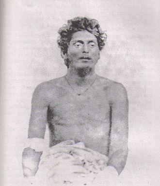 Anushilan Samiti - Bagha Jatin, wounded after his final battle on the banks of Burha Balang off Balasore