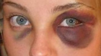 Blunt trauma - Image: Black eye 2