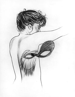 Breast reconstuction latissimus dorsi illustration