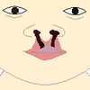 Cleft lip left right front.png