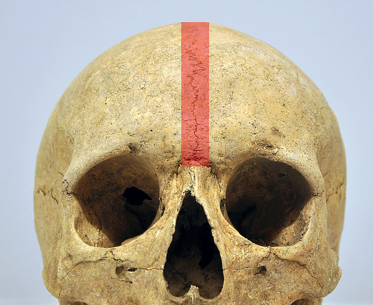 File:Crane suture metopique 01 04 2012 2 B.jpg