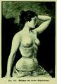 Die Frau als Hausärztin (1911) 141 Mädchen mit starker Schnürfurche.png