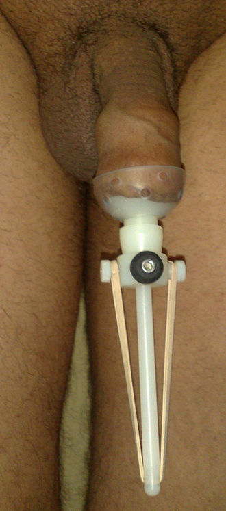 Foreskin restoration - Dual tension restorer applied to a circumcised penis for non-surgical foreskin restoration