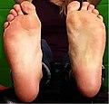Flat feet soles.jpg