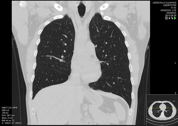 High-resolution computed tomograph of a normal thorax, coronal plane (26).jpg