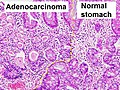 Histopathology of gastric adenocarcinoma and normal histology.jpg