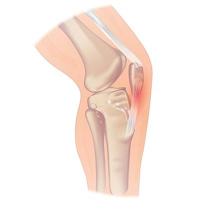 Jumpers knee.jpg