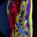 LSV MRI spondylolisthesis T1W T2W STIR 14.jpg