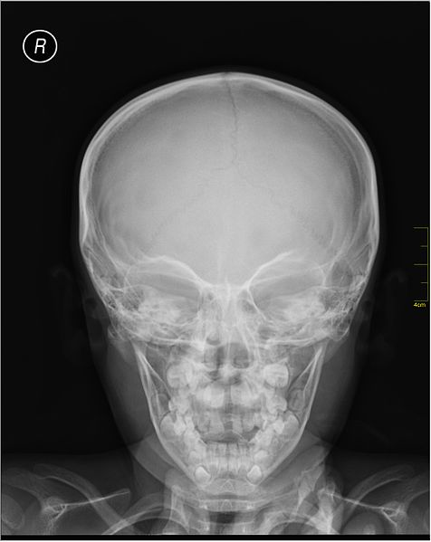 File:Medical X-Ray imaging EUD04 nevit.jpg