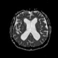 NPH MRI 130.png