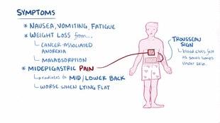 Dosiero: Pankreata carcinoma.ŭebm