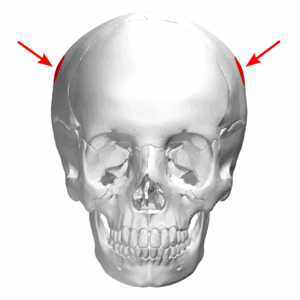Parietal eminence - Front view of the skull. (Parietal eminence pointed by arrows.)