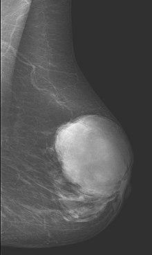 tumor papilloma de mama