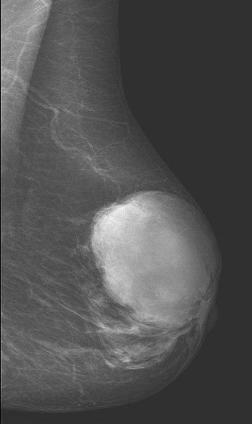 File:Phylloidestumor der Mamma - Mammographie.jpg