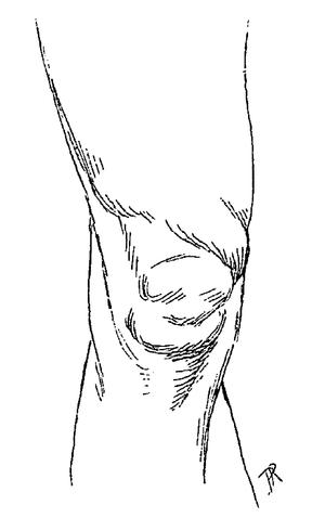 Anatomie artistique tome 1 wikisource - Dessin du genou ...