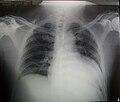 Rx Torax Cardiomegalia.jpg