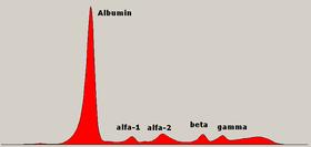 Elektroforéza sérového proteinu normální. PNG