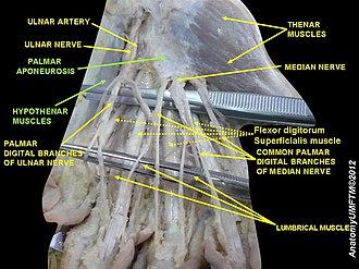Palmar aponeurosis - Image: Slide 3RRR