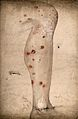 Syphilis; lesions on man's right leg, 1840-70 Wellcome V0009997.jpg