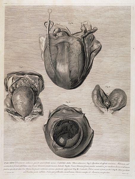 File:The anatomy of the human gravid uterus; 3 months foetuses. Wellcome L0034659.jpg