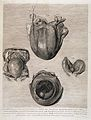 The anatomy of the human gravid uterus; 3 months foetuses. Wellcome L0034659.jpg