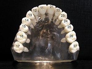 Dental notation - Image: Zahnschema OK 1