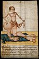 A woman with scales on her upper body and grossly enlarged l Wellcome V0007397.jpg