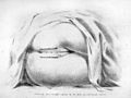 Baker Brown, On surgical diseases of women Wellcome L0031436.jpg