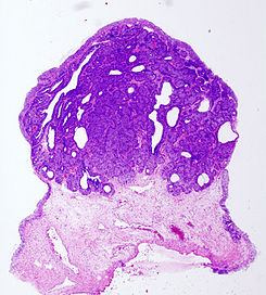Bladder inverted papilloma histopathology (3).jpg