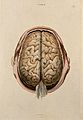 Brain; dissection showing the gyri, seen from above. Coloure Wellcome V0008410.jpg