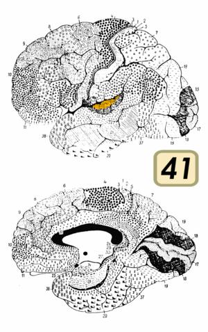 Brodmann area 41 & 42 - Image: Brodmann Cytoarchitectonics 41