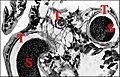 Bulbe de Mastophora mâle.jpg