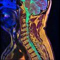 Cervical spine MRI T1FSE T2frFSE STIR 05.jpg