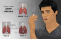 Depiction of a person smoking and stages of Lung Cancer ru.png