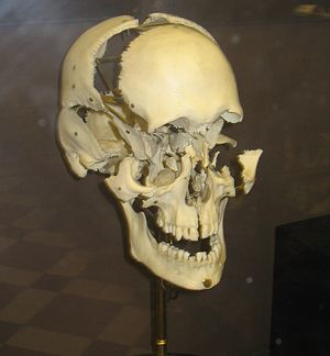 Exploded Human skull from the Zoological Museu...