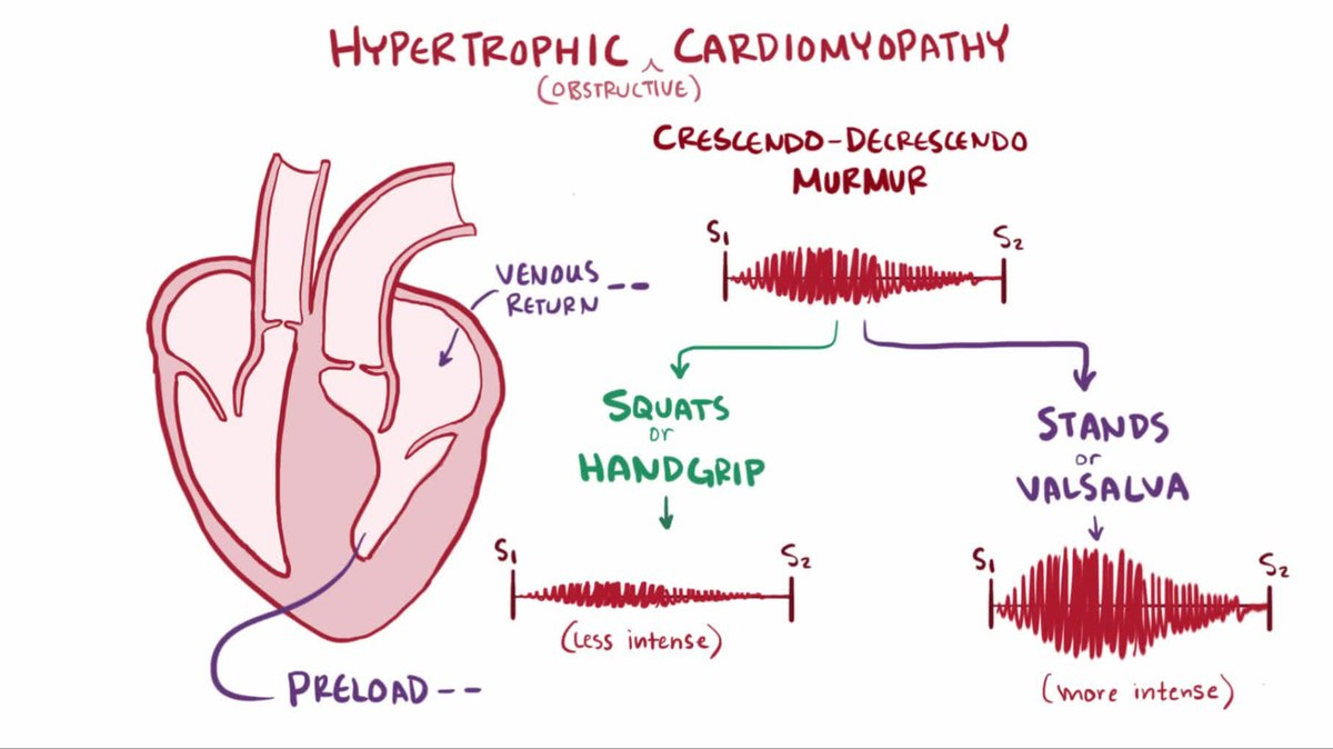 hypertrophic cardiomyopathy Introduction hypertrophic cardiomyopathy (hcm) is a genetically determined heart muscle disease most often (60 to 70 percent) caused by mutations in one of several sarcomere genes which encode components of.