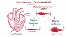 File:Hypertrophic cardiomyopathy video.webm
