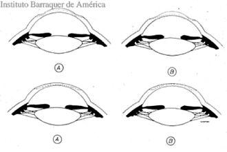 Jose Barraquer - Image: IBA Graf 2