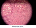 Kleibsiella Granulomatis 4.png
