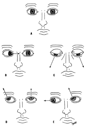 Cranial nerves - Various deviations of the eyes due to abnormal function of the targets of the cranial nerves
