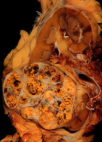 Nephrectomy specimen containing a Renal cell carcinoma (the yellowish, spongy-looking tumor in the lower left).