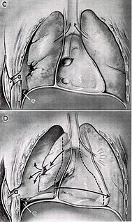 Tracheal deviation clinical sign that results from unequal intrathoracic pressure within the chest cavity