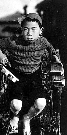 A young Japanese boy of about nine, scowling and staring towards left of frame, wearing a sweater and short pants and sitting on what appears to be a fence, with out-of-focus houses seen in the background.