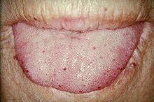 Hereditary Hemorrhagic Telangiectasia Wikipedia