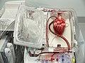 Transport bijícího srdce.jpg