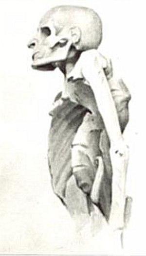 Paleopathology - Tuberculosis spine mummy