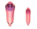 Vaginal Canal Normal vs. Menopause.png
