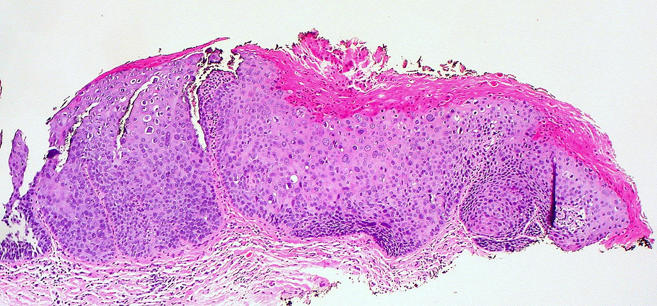 Vulvar Intraepithelial Neoplasia (vin) Pathology Outli...