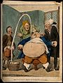 A doctor performing a paracentesis on an obese man, whose ab Wellcome V0011083.jpg